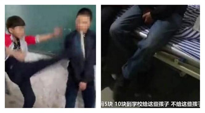 3岁男孩遭多名同校学生殴打